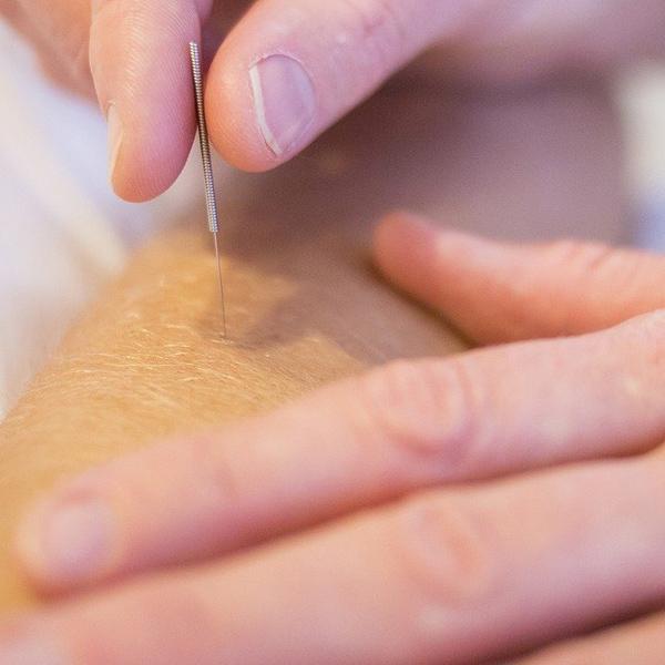 Akupunktur i Århus hos Fysioterapien Åboulevarden. En avanceret behandlingsmetode mod forskellige skavanker og fysiske gener